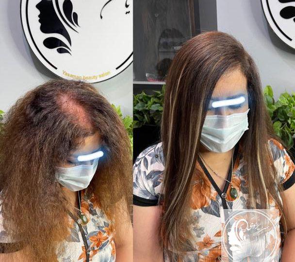 YasamnaBeauty-Alopecia