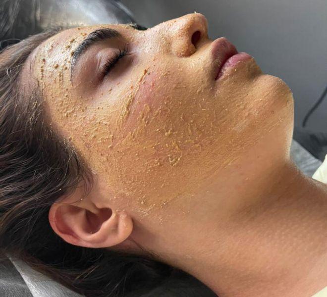 yasaman yazdi-yasamanbeauty-facial skin